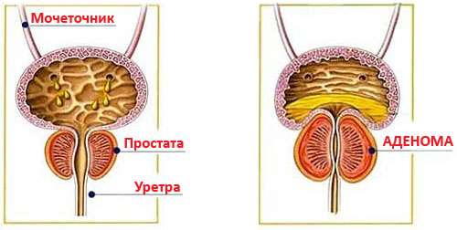Народні ліки від аденоми простати
