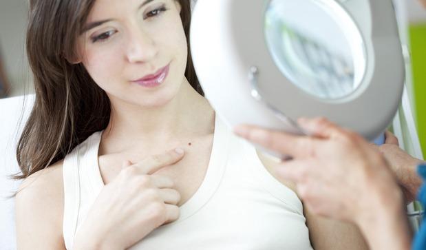 Удаление лазером плоских бородавок на лице